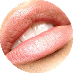 lip fillers in london