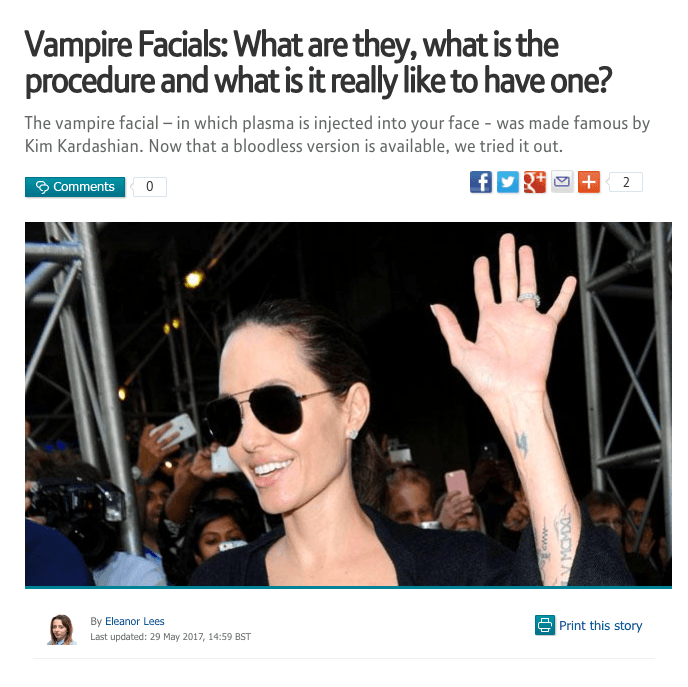 Vampire Facials: What are they, what is the procedure and what is it really like to have one?