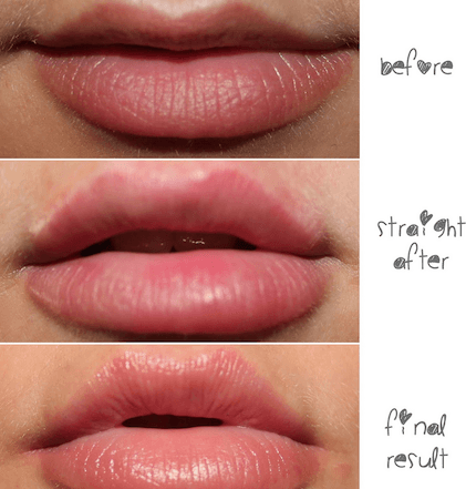 Lip Augmentation in London