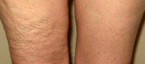 machines for cellulite reduction london